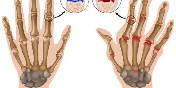 How Physiotherapy Can Help Treat Rheumatoid Arthritis